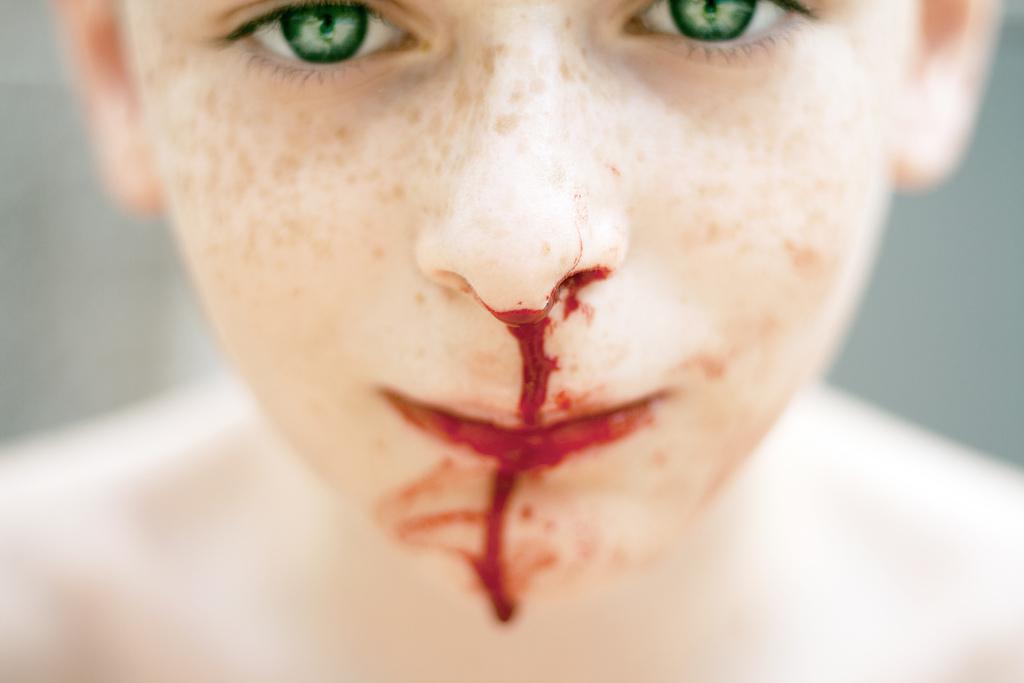 Blutiger Schleim Nase