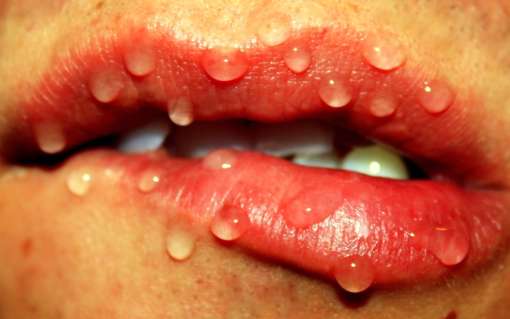 нормальными губы изнутри в картинках нашем магазине можете
