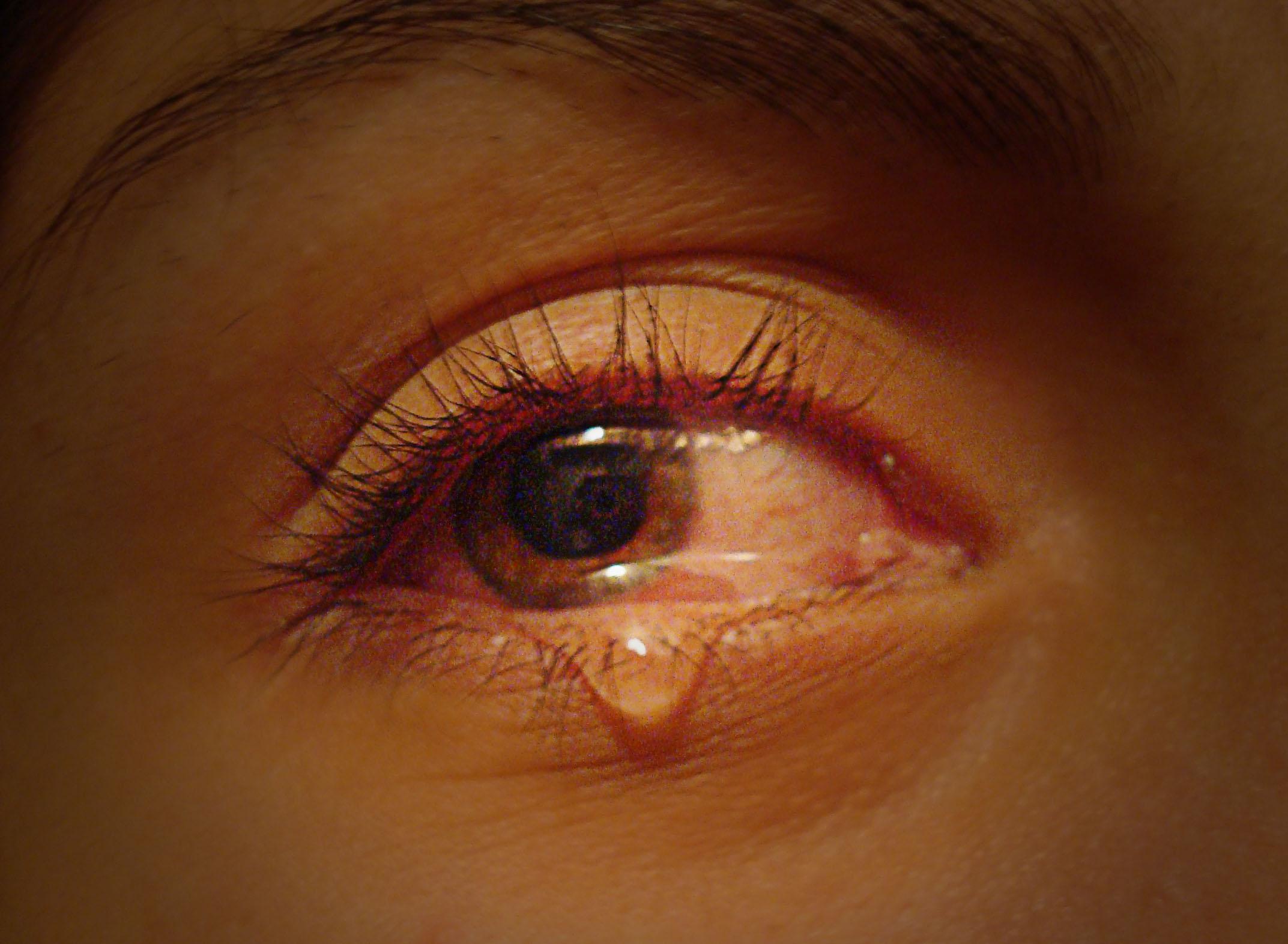 как убрать заплаканные глаза быстро этом, практически ежегодно